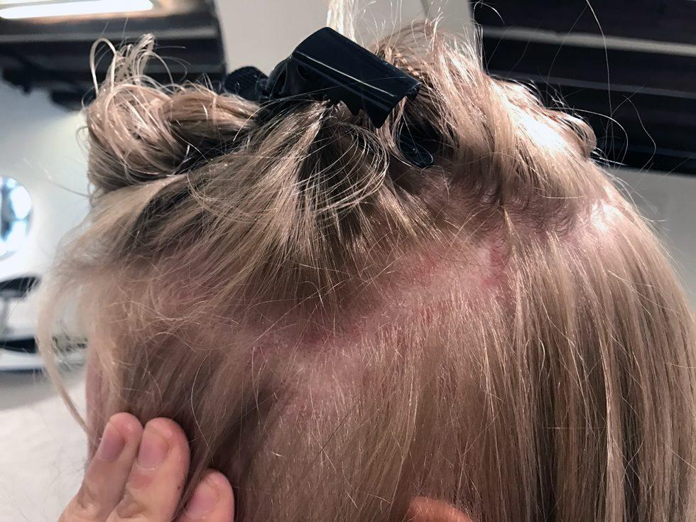 skorpor i hårbotten